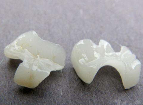 1 miếng trám Onlay hoàn chỉnh phải vừa khít với răng thật