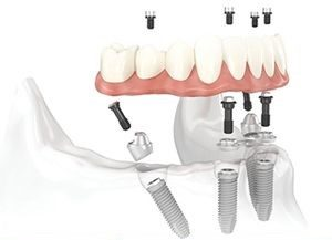CẤY GHÉP IMPLANT ALL ON 4