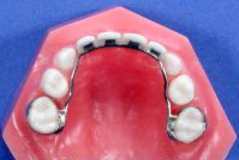 Khâu được gắn cố định vào răng cối sữa và nối lại với nhau, mặt trong có tựa bằng kim loại được đúc để nối với 4 răng cửa hàm trên bị mất.