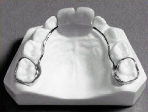 Khâu được gắn cố định vào răng số 6 hàm trên và nối lại với nhau, tạo thành khí cụ với hai chiếc răng tạm thay thế cho răng cửa sữa hàm trên bị mất