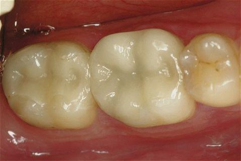 Một miếng trám Inlay làm bằng chất liệu toàn sứ ceramic cho màu sắc răng trắng tự nhiên như thật.