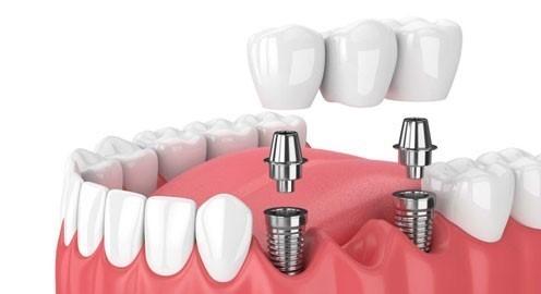 Quy Trình Cấy Ghép Răng Implant Đúng Tiêu Chuẩn? - Nha Khoa 68