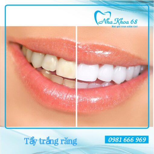 Giải pháp tẩy trắng răng an toàn